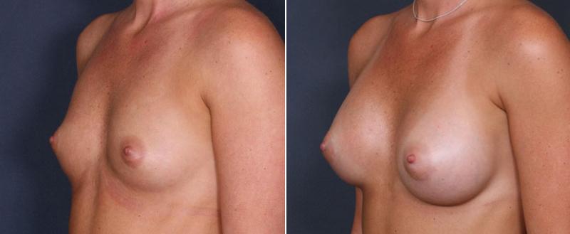 Breast Enlargement Pills From Walmart